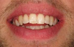 after teeth straightening