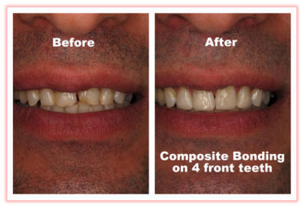 before and after composite bonding