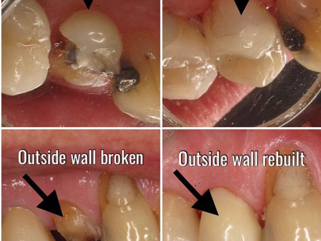 Onlays instead of crowns: less drilling, stronger teeth and happier patients!