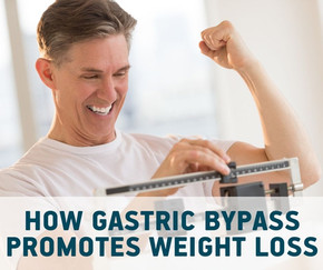 How does gastric bypass surgery promote weight loss?