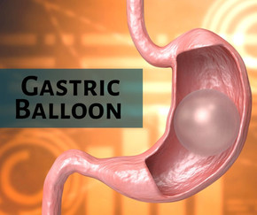 The Gastric Balloon - a nonsurgical weight-loss tool that works