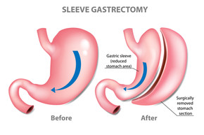 The honest truth about gastric sleeve surgery