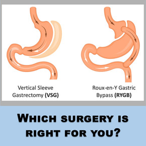 Gastric Bypass vs. Gastric Sleeve Surgery: Which weight loss procedure is right for you?