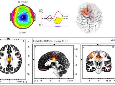 La Neurociencia Cognitiva se basa en un enfoque personalizado