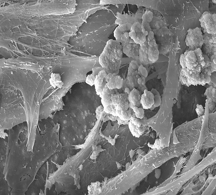 Calcified SMC.png
