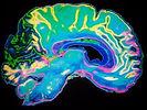 psychopath-brain-mri-2_edited_edited.jpg