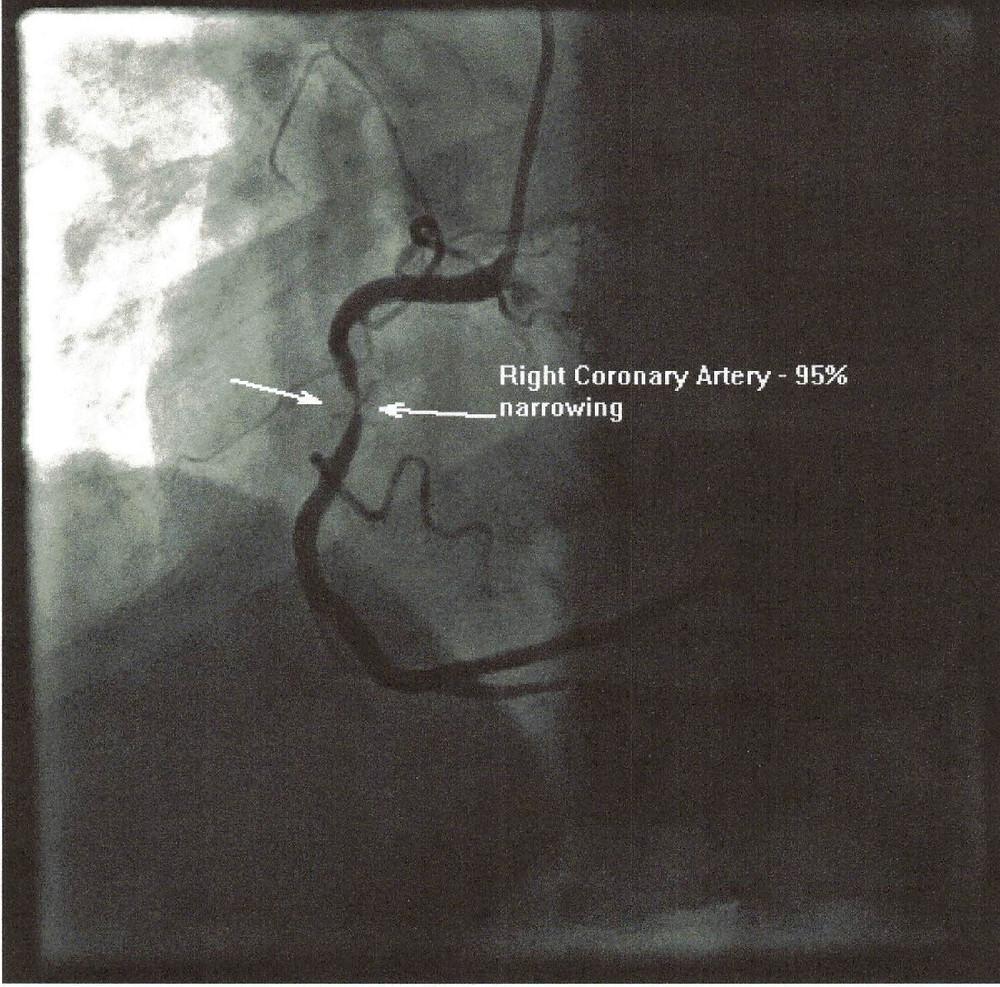 Image of Right Coronary Artery nearly blocked