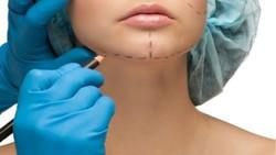 cirurgia no queixo mentoplastia-450x350_18622_242_427