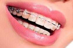ortodontia-especialização-400x267