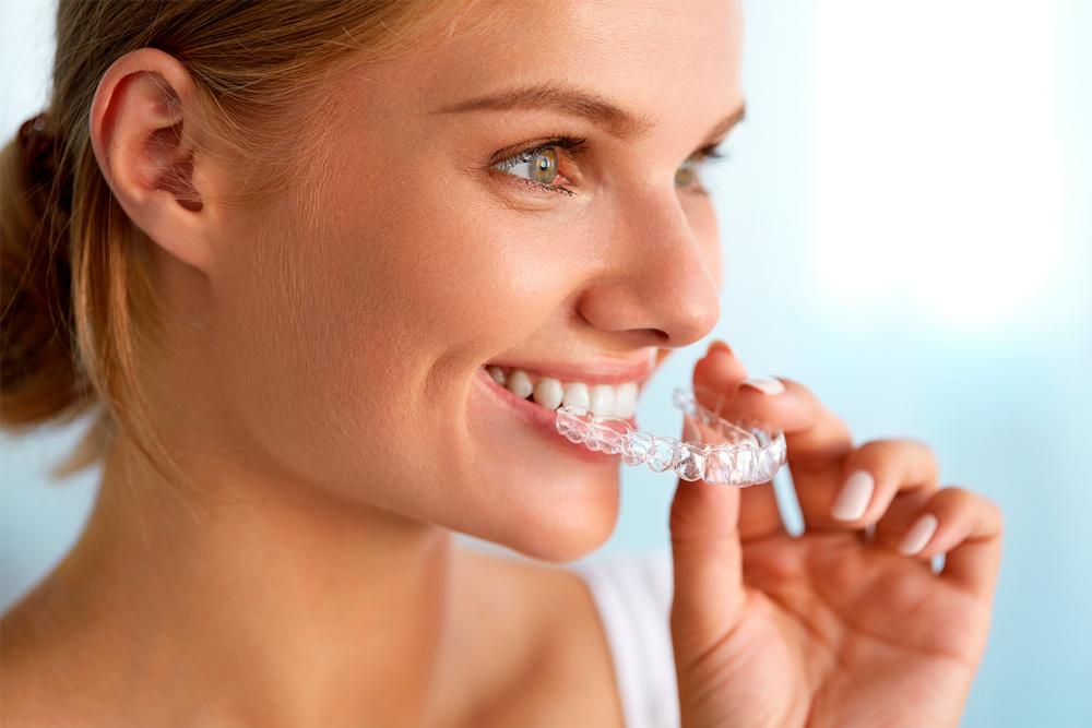 alinhadores-esteticos-ortodonticos-esthetic-aligner-ortodontia-com-alinhadores