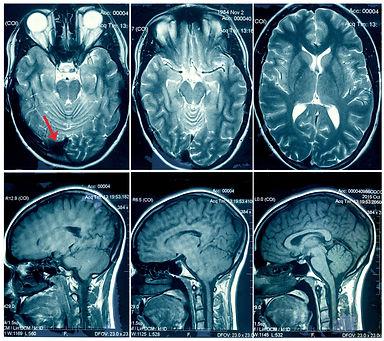 Brain_panel pic for website.jpg