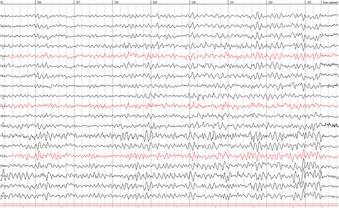 EEG waves for background.png