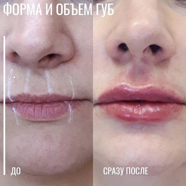 👄💉1 мл гиалуроновой кислоты изменит вс