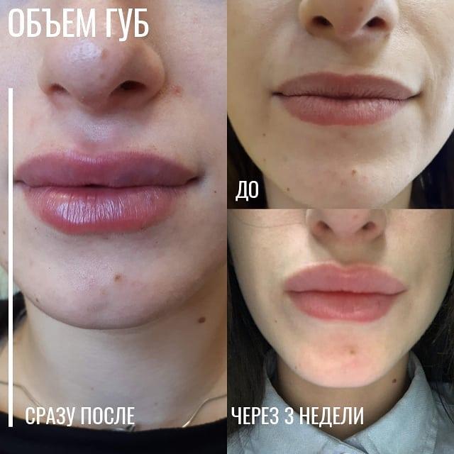 💉Коррекция объема или формы губ сразу п