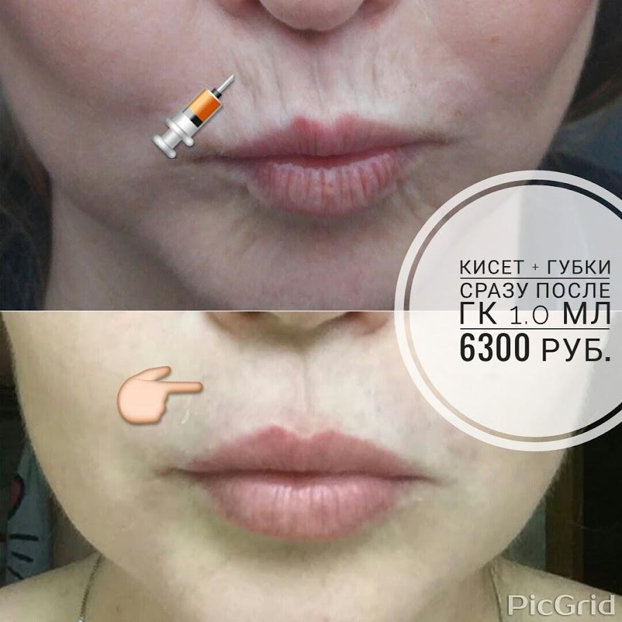 Контурная пластика губ и кисетных морщин
