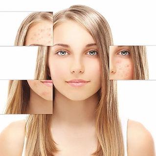 Melsmon acne.jpg