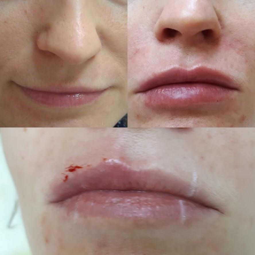 Контурная пластика губ Елена Фаст