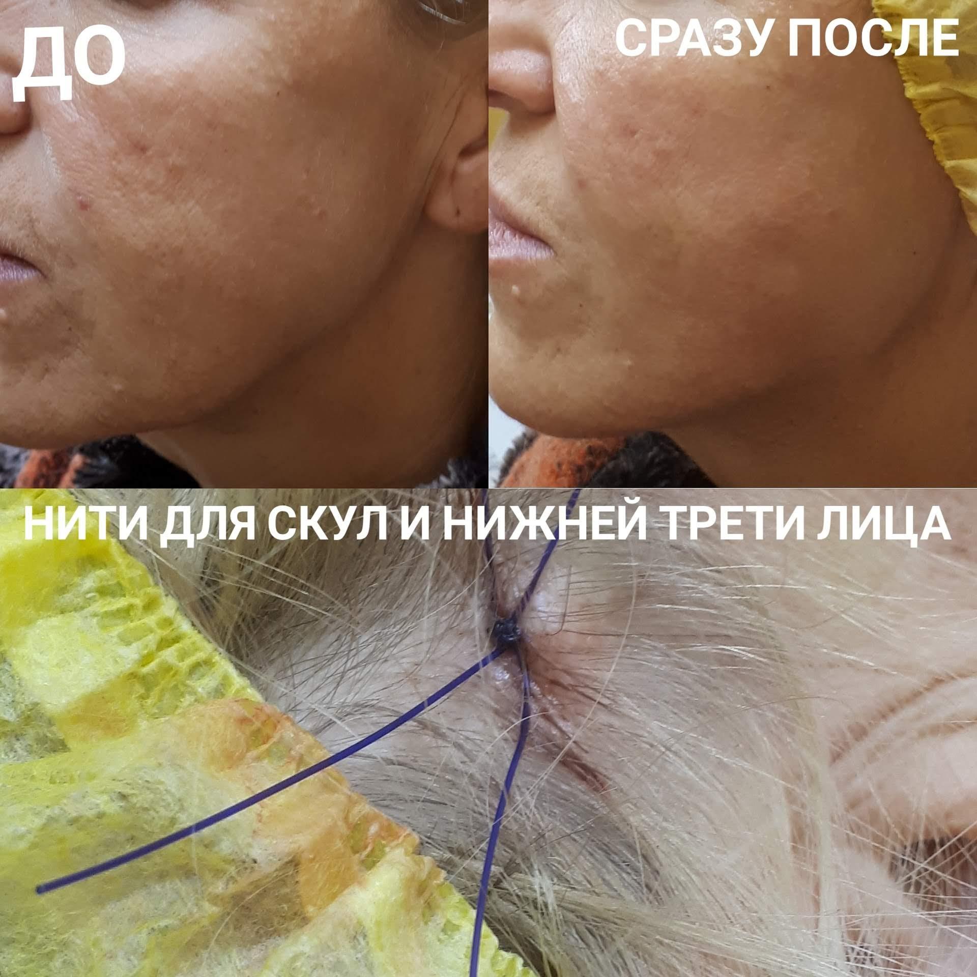 IMG_20181109_203245_756
