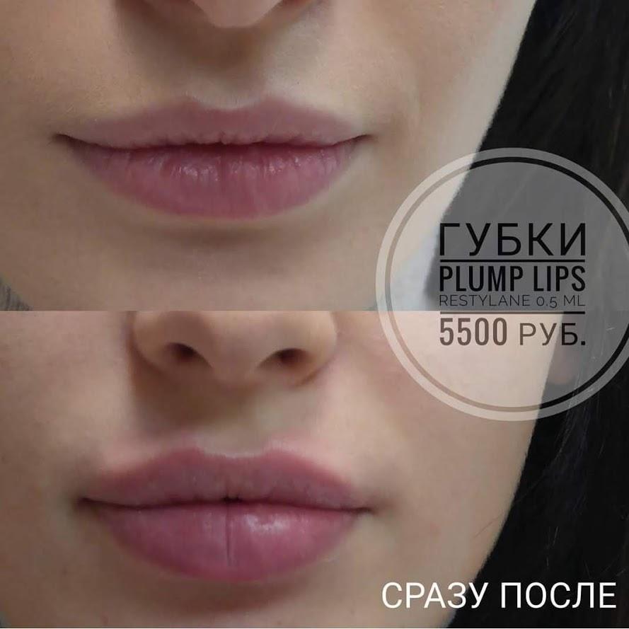 Контурная пластика губы_Beauty FiFa