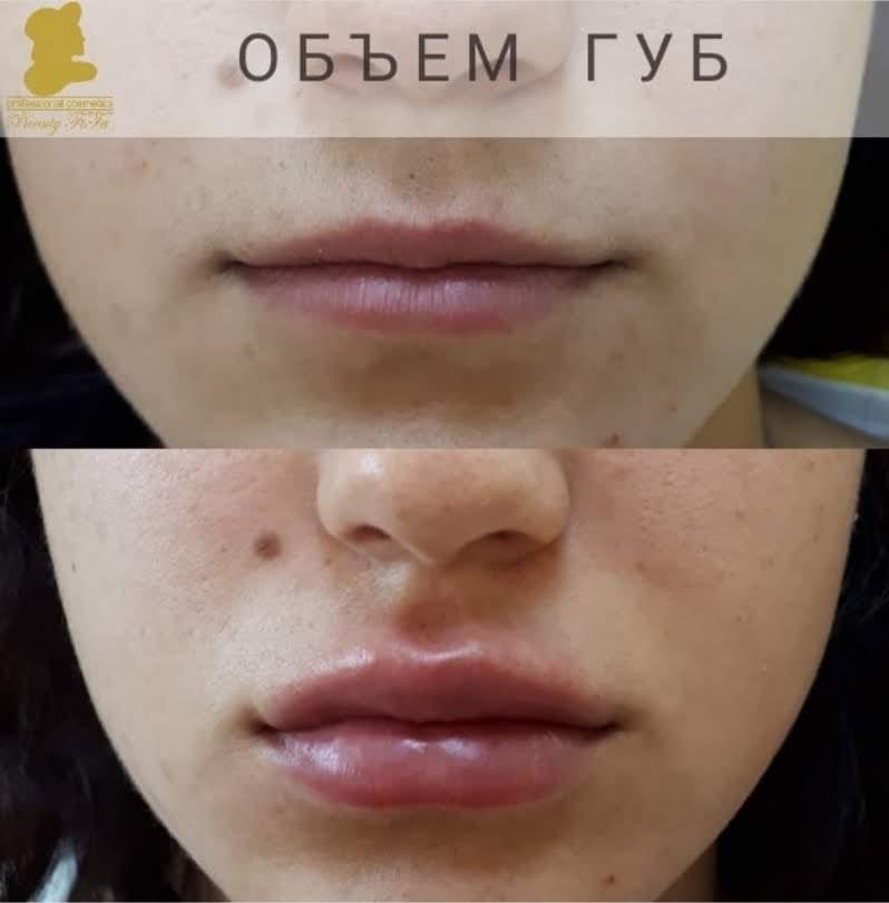 Контурная пластика губы Beauty FiFa