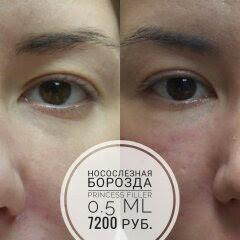 Носослезка_Beauty FiFa