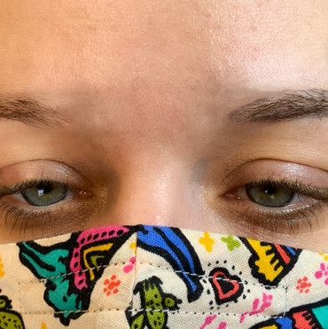 Before-right brow needs to be brought inward