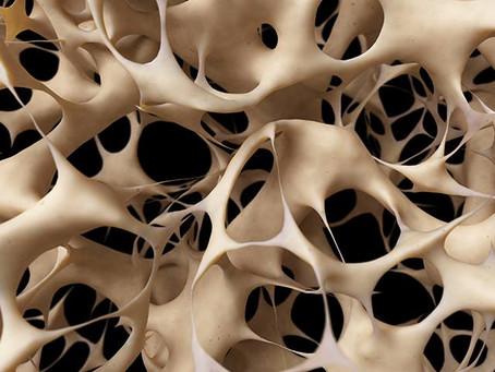 DECODIFICACION BIOEMOCIONAL  La Osteoporosis y su Origen Emocional
