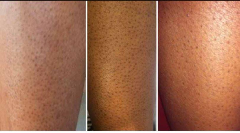 Home Beauty hacks | Strawberry Legs