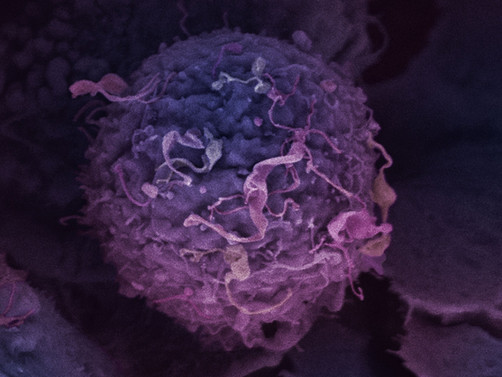 Early research findings could in future help screen women with BRCA mutations