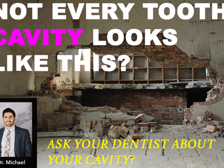 Not Every Tooth Cavity Looks Like This!