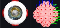 Cataract haptic model