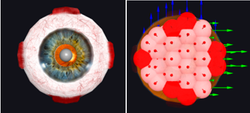 Glaucoma haptics model