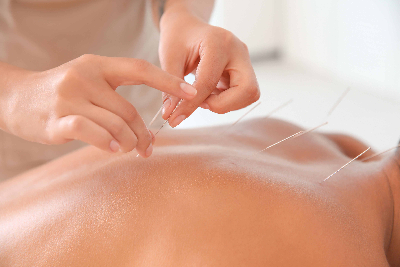 Initial Acupuncture Treatment +consult.