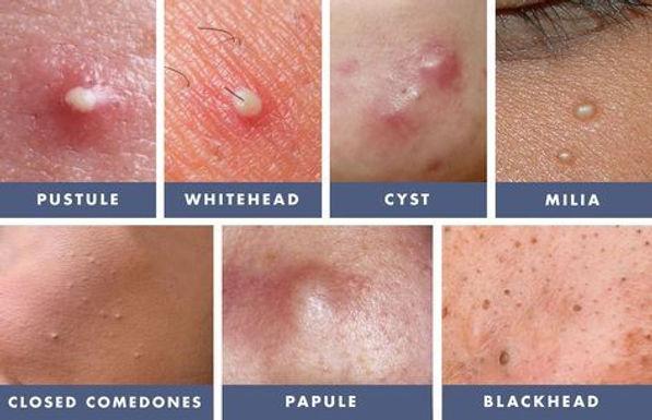 Types of Acne.jpg