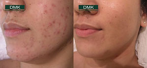 DMK-Acne-image.jpg