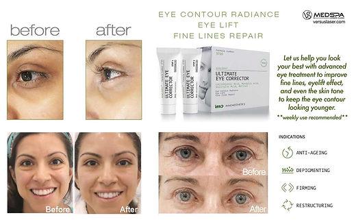 Ultimate Eye Corrector.jpg