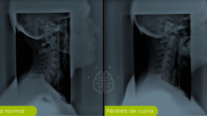 Curvatura Cervical, ¿por qué es tan importante?