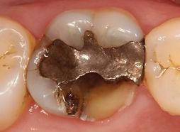 loss dental filling.jpg