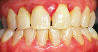 gum disease.png