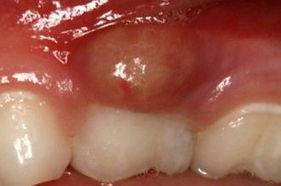 dental abscess.jpg