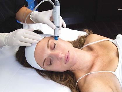 Hydrafacial being preformed on a woman