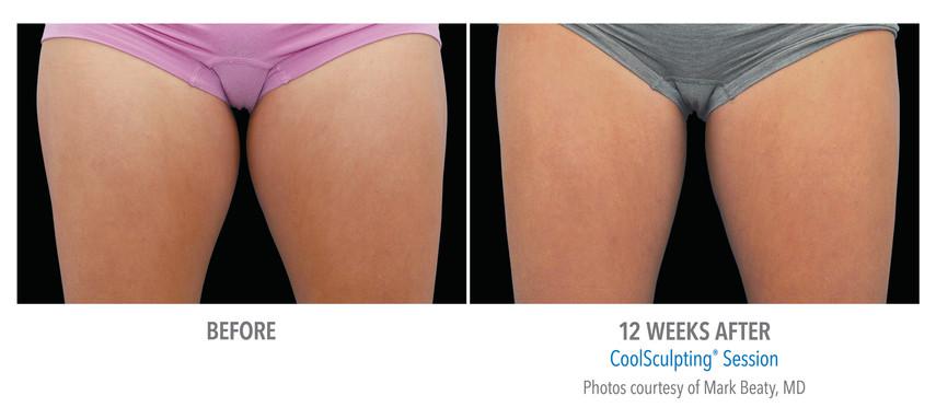 24-Female Inner Thigh-DrBeaty-CMYK-Medium.jpg