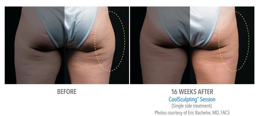 23-Female Outer Thigh.jpg