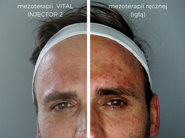 vital-injector-2-efekt-mezoterapia-igłowa-wieloigłowa-próżniowa-zabieg-rewitalizacja-laserowe-love-racibórz