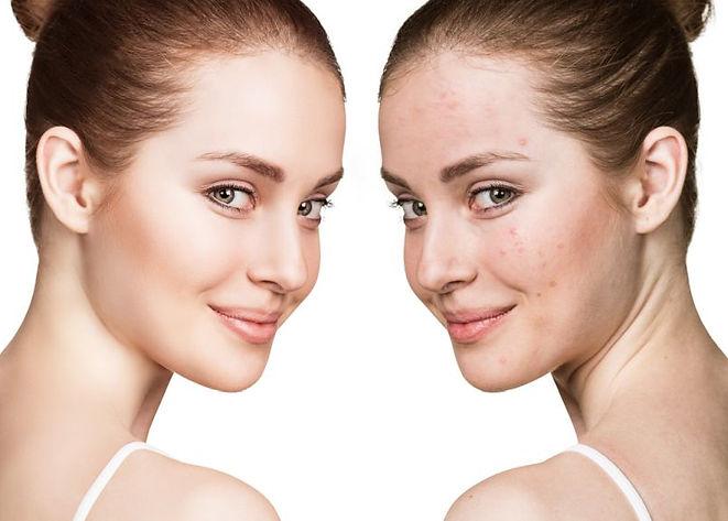 terapia-trądzik-przeciwtrądzikowa-oczyszczanie-pryszcze-zaskórniki-rozszerzone-pory-dermaquest-dermomedia-kosmetyka-profesjonalna-laserowe-love-racibórz