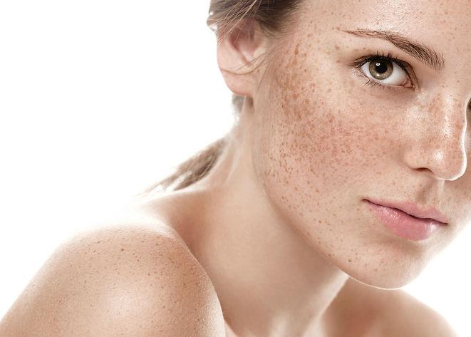 przebarwienia-zabiegi-dermaquest-dermomedica-kosmetyka-profesjonalna-laserowe-love-racibórz