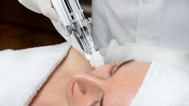 vital-injector-mezoterapia-próżniowa-wieloigłowa-laserowe-love-racibórz
