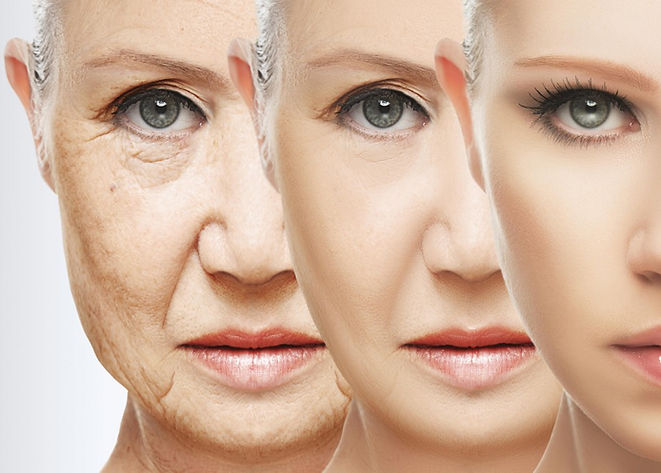 terapie-anti-aging-przeciwzmarszczkowe-zmarszczki-bruzdy-starzenie-się-skóry-laserowe-love-racibórz-kosmetyka-profesjonalna