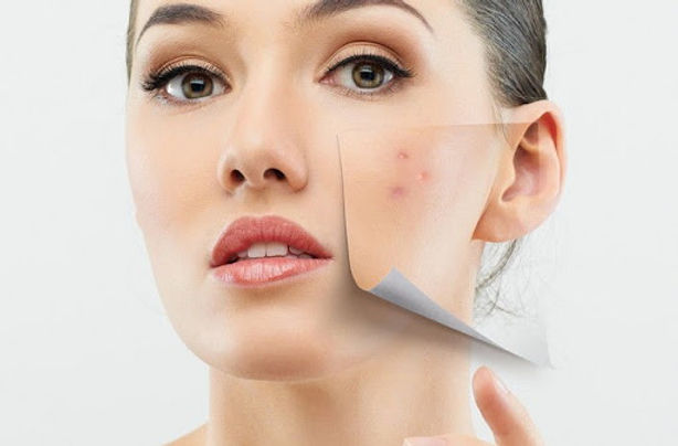 skóra-wrażliwa-delikatna-naczyniowa-cieńka-dermaquest-dermomedica-kosmetyka-profesjonalna-laserowe-love-racibórz