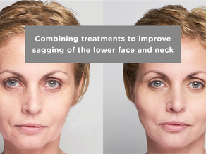 Combining treatments to improve sagging of the lower face and neck.